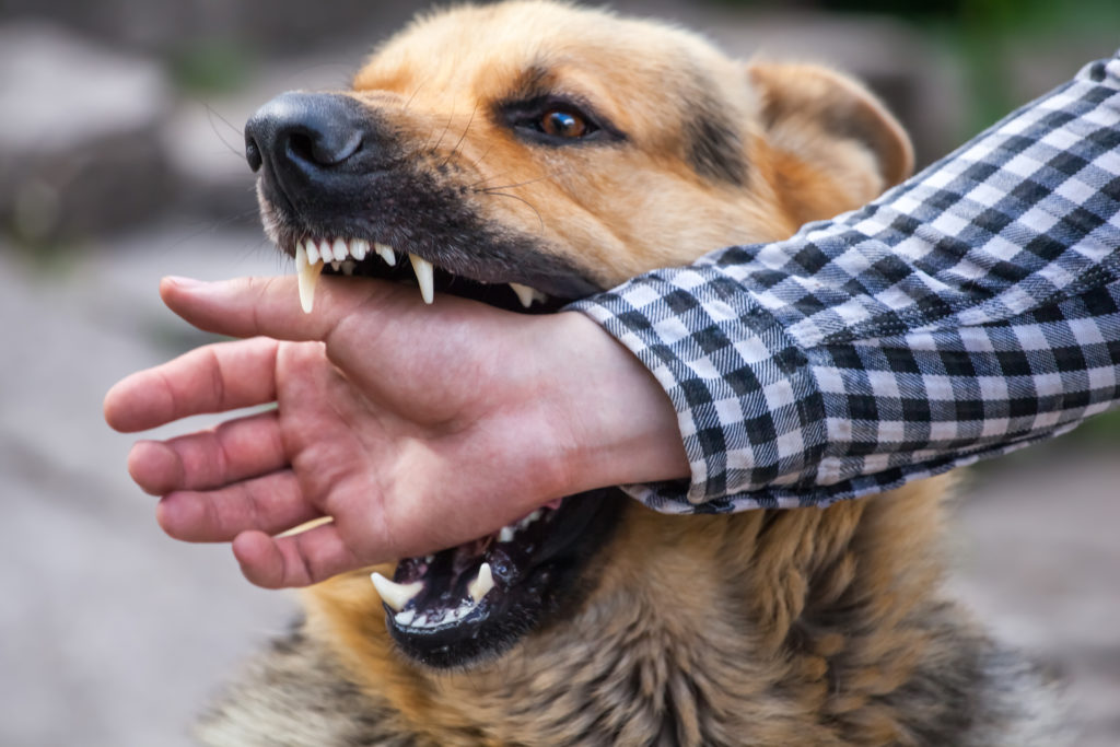 a large dog biting a person who will need legal assistance from a dog bite lawyer